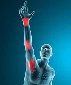 Uomo ai raggi x stiramento dolore braccio